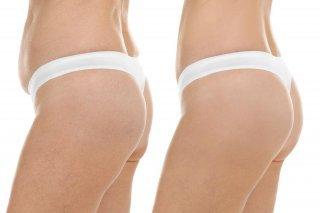 cosmetic-surgery-blog-18-320x213-1.jpg